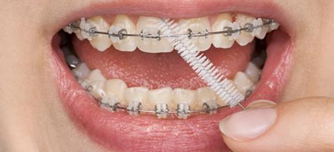 Orthodontiste à Paris, Dr Jean Dupont