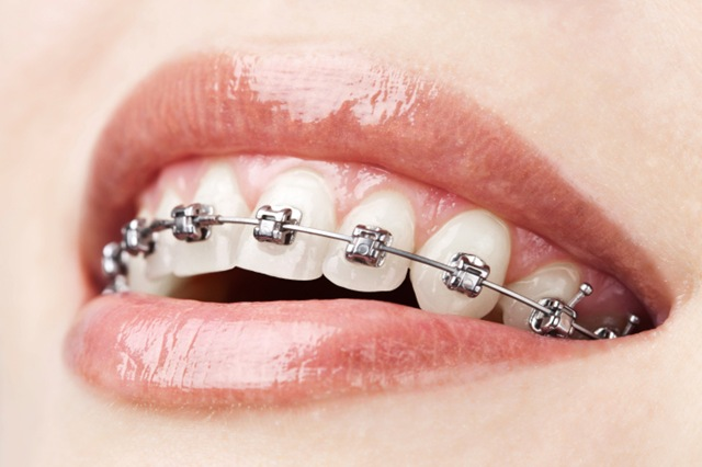 Orthodontiste à CLERMONT FERRAND, Dr Hassna NAHLI