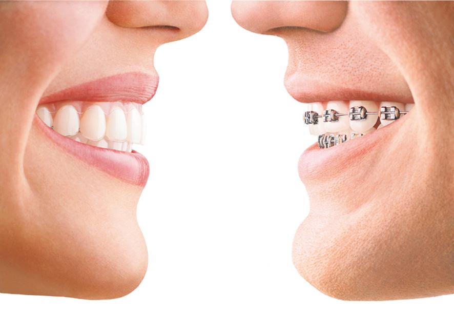 Orthodontiste à Saint Jean de Luz, Dr Coralie DAVID
