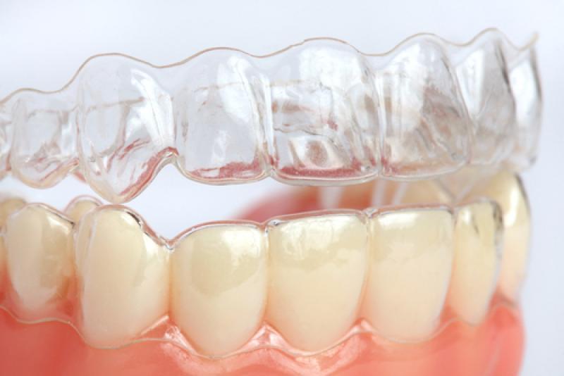 Orthodontiste à LA COLLE SUR LOUP, Dr Carine MACCARIO